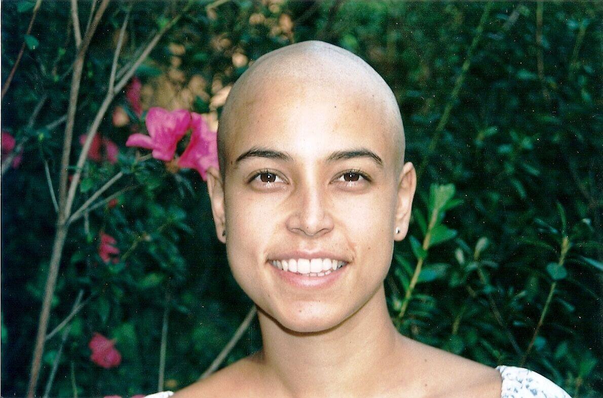 Camila durante tratamento do linfoma